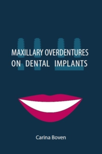 carina van boven - maxillary overdentures on dental implants