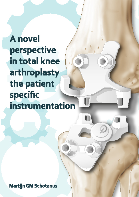A novel perspective in total knee arthroplasty