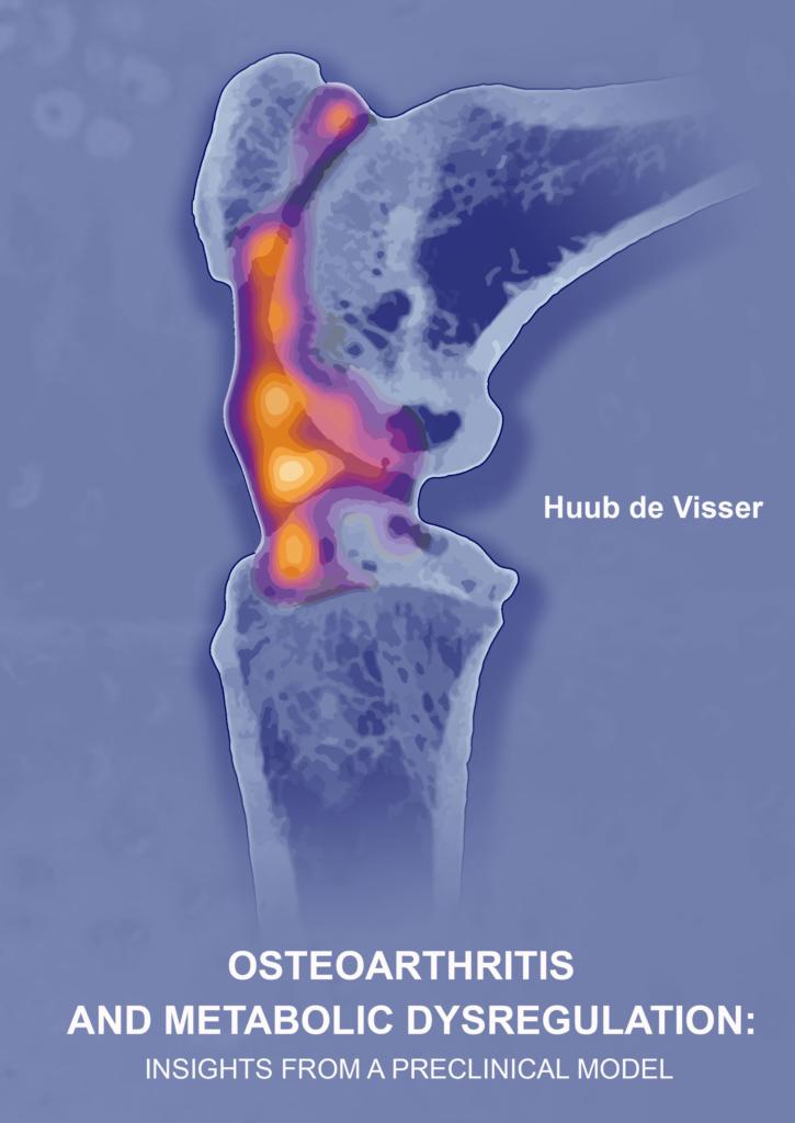 Osteoarthritis and metabolic dysregulation
