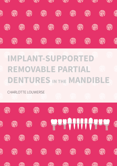 Implant-supported removable partial dentures in the mandible