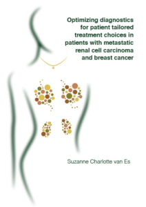 Optimizing diagnostics for patient tailored treatment choices in patients with metastatic renal cell carcinoma and breast cancer
